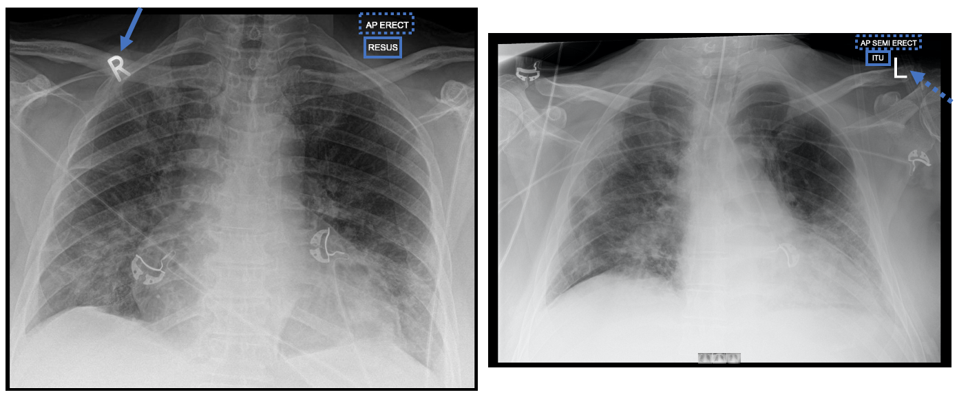Chest X-ray images of COVID-19 patients (mobile)
